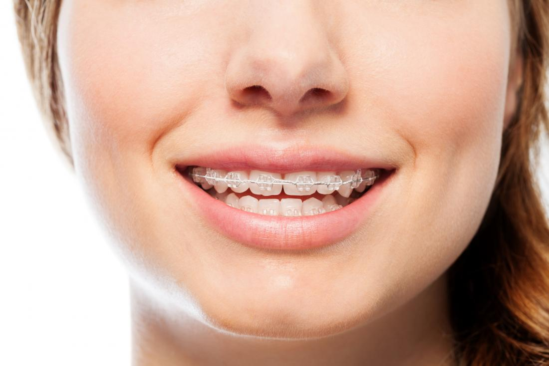 , How Untreated Orthodontic Issues Affect Adults