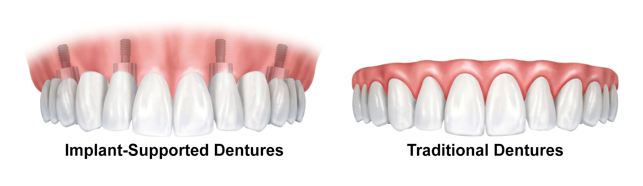 The Benefits of All-on-4® Implant Dentures